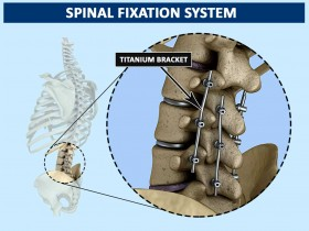 3D Spinal Fixation System
